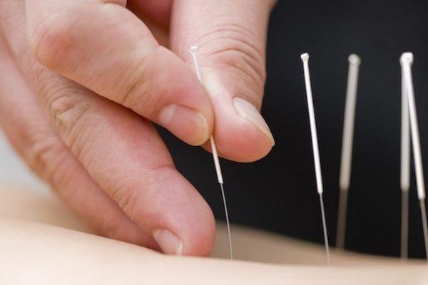 acupuntura_16944_l-603x427